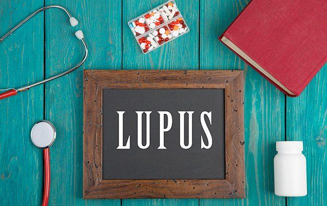 O que é Lupus?