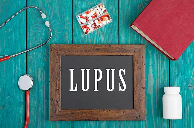 Lupus: Tratamento, Sintomas, Diagnóstico